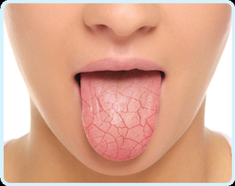 tongue-img
