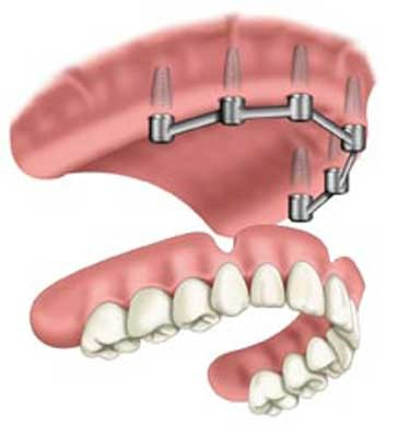 6ir-max-overdenture-stage-4-web